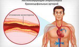 Лечение и симптомы нестенозирующего атеросклероза