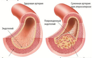 Причины и лечение мультифокального атеросклероза