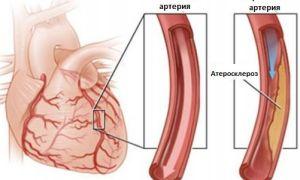 Что такое атеросклероз сердечных сосудов