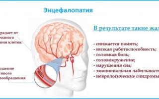 Лечение профилактика и симптоматика гипертонической энцефалопатии