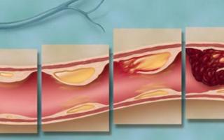 Причины и лечение облитерирующего атеросклероза сосудов нижних конечностей
