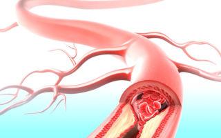 Причины и лечение атеросклероза малых сосудов