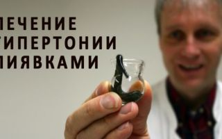 Лечение пиявками при гипертонии