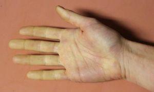 Симптомы и лечение атеросклероза верхних конечностей