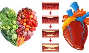 Диета при атеросклерозе сосудов сердца