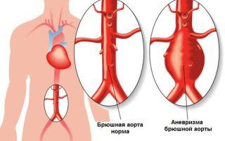 Причины и лечения атеросклероза брюшной аорты