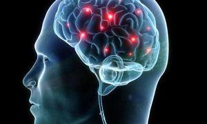 Причины и лечение церебрального атеросклероза сосудов головного мозга