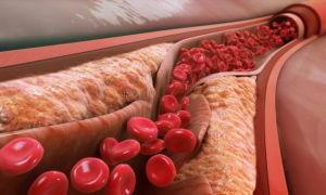 Патофизиология, патогенез, патанатомия и этиология атеросклероза