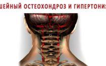 Гимнастика при гипертонии и шейном остеохондроза