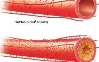 Стенозирующая и нестенозирующая форма атерослекроза артерий