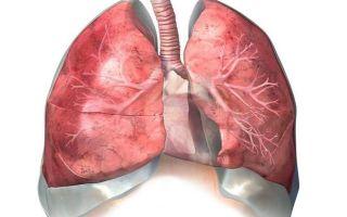 Симптомы, диагностика и лечение атеросклероза легких