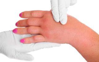 Симптомы и лечение гипертонии 3 степени