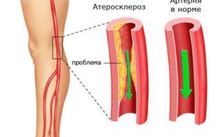 Лечение атеросклероза нижних конечностей