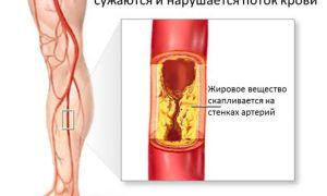 Лечение облитерирующего атеросклероза сосудов нижних конечностей