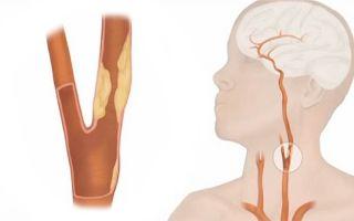 Причины, диагностика и лечение атеросклероза сосудов шеи