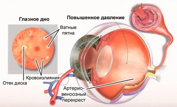 Опасность для глаз гипертонии