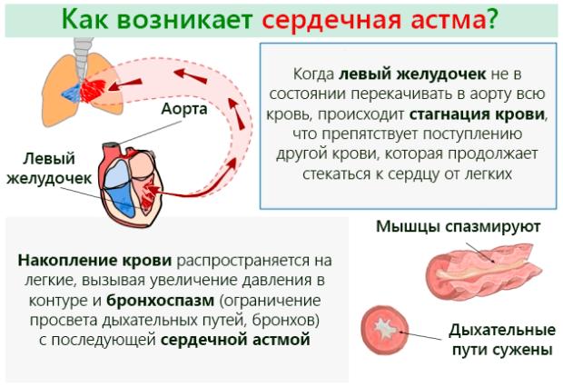 Сердечная астма при ГК