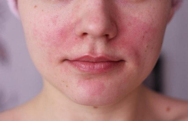 Покраснение лица при повышенном давлении
