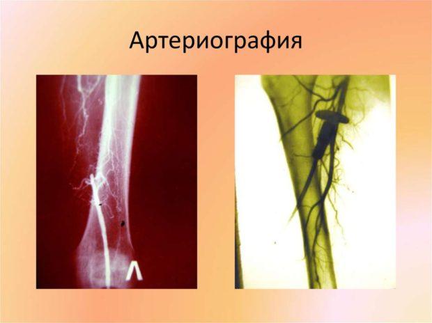 Снимок артерий
