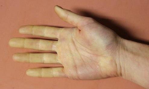 Атеросклероз рук