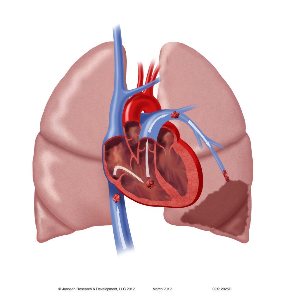 Тромбоэмболия сосудов