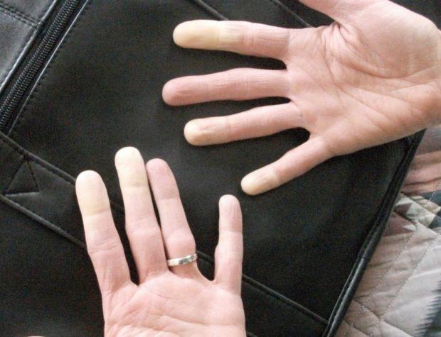 Побеление пальцев
