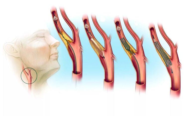 Трофика интимы артерии только