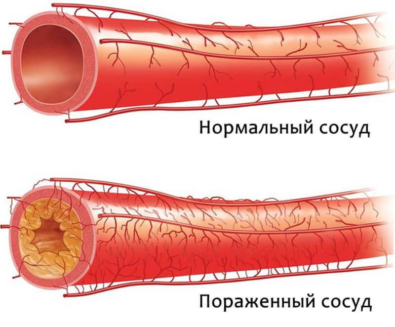 Сосуд, пораженный атеросклерозом