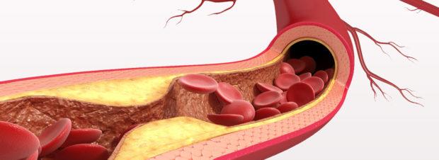 Аеросклероз сонных артерий