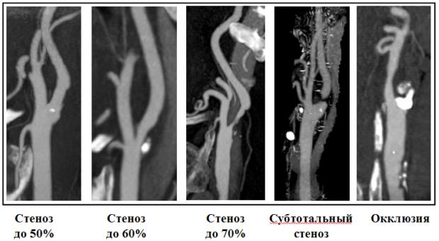 Стадии атеросклероза артерий на снимках КТ