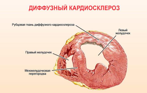 Кардиосклероз диффузный