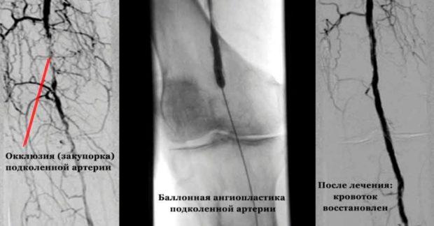 Препарат для лечения атеросклероза сосудов нижних конечностей лекарства thumbnail