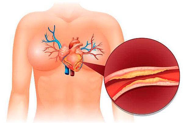 Атерокардиосклероз