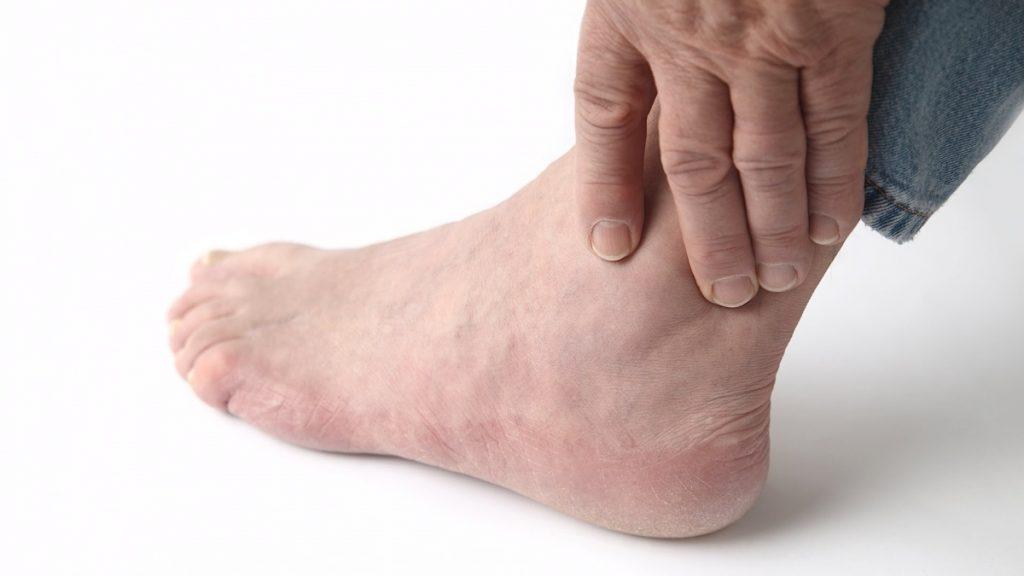 Боль в ногах при атеросклерозе