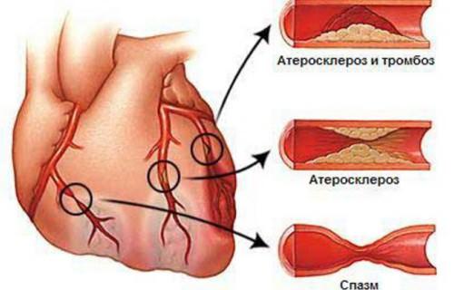 Атеросклероз сердечный