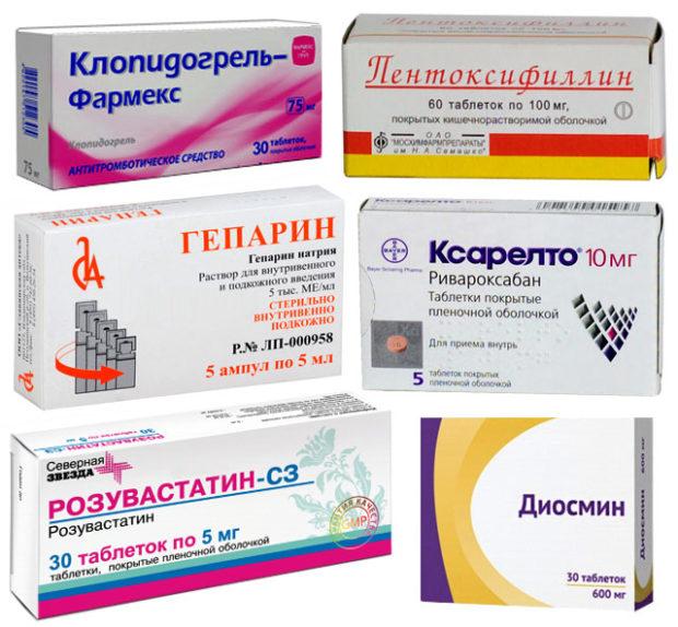 Как лечить атеросклероз сосудов нижних конечностей лекарства thumbnail