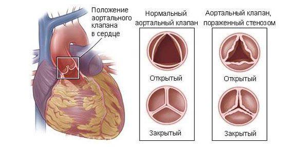 Стеноз миокарда