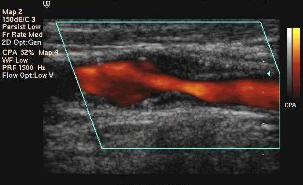 Атеросклероз сосудов ног выявляется и при помощи дуплексного сканирования