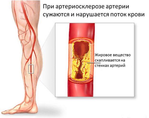 Атеросклероз ног. лечение