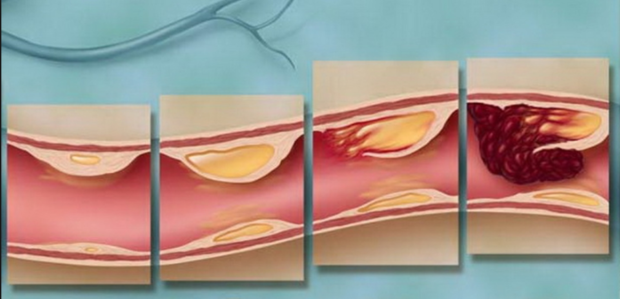 Развитие облетирирующего атеросклероза