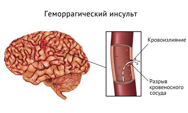 Осложнение - инсульт
