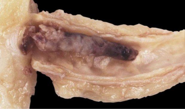 Атерокальциноз сосудов