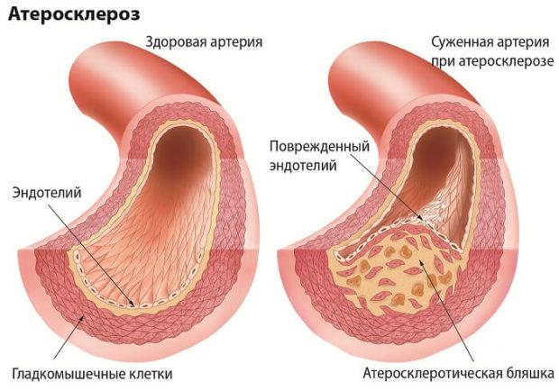 Мультифлокальный атеросклероз
