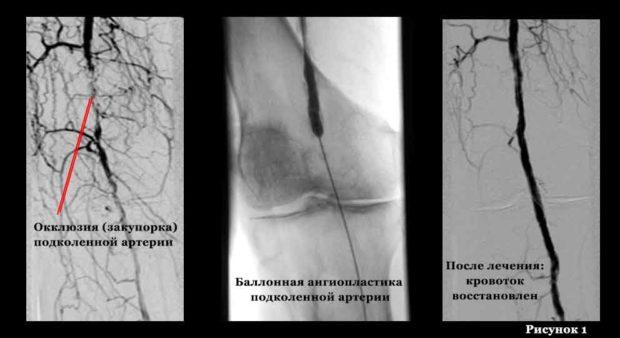 Хирургическое лечение атеросклероза