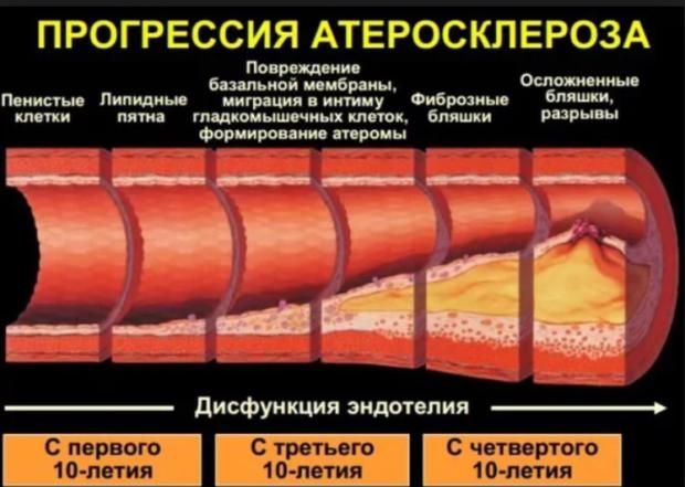 Прогрессирование атеросклероза