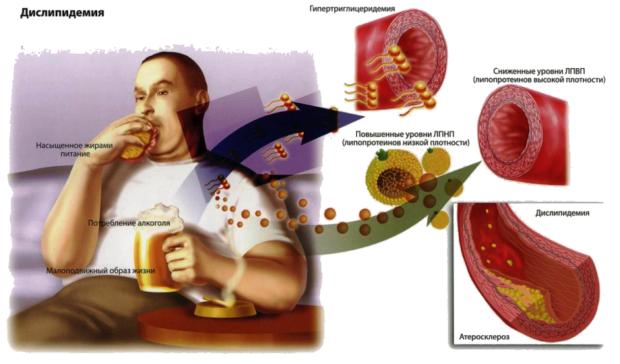 Предрасполагающие факторі к развитию атеросклероза