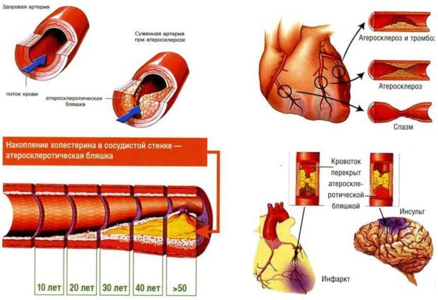 Общая информация об атеросклерозе