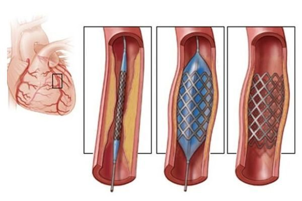 Операция шунтирования при атеросклерозе