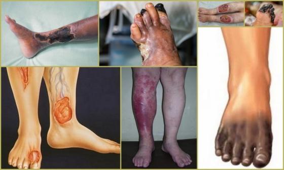 Трофические язвы на ногах при атеросклерозе