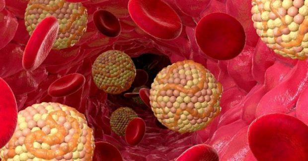 Липидные клетки в крови